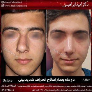 سپتوپلاستی توسط دکتر امید ابراهیمی