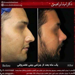 عمل طبیعی بینی مردانه توسط دکتر امید ابراهیمی