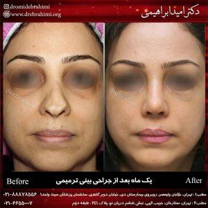 عمل بینی ترمیمی توسط دکتر امید ابراهیمی بهترین جراح ترمیمی بینی