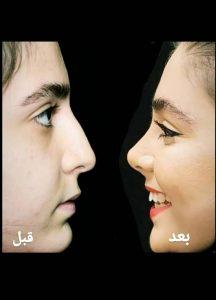 جراحی بینی عروسکی توسط دکتر امید ابراهیمی
