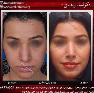 جراحی بینی طبیعی زنانه