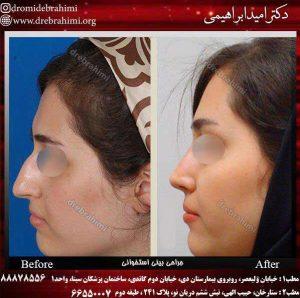 جراحی بینی طبیعی زنانه توسط دکتر امید ابراهیمی
