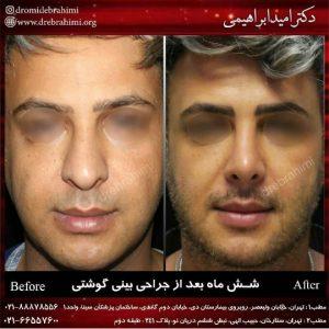 جراحی نوک بینی توسط دکتر امید ابراهیمی
