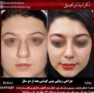 عمل بینی گوشتی زنانه توسط دکتر امید ابراهیمی