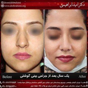 عمل بینی گوشتی زنانه   دتر امید ابراهیمی بهترین جراح بینی گوشتی در تهران
