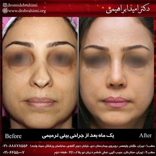 عمل بینی ترمیمی 5