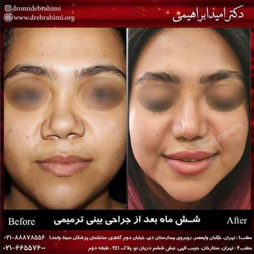 عمل بینی ترمیمی 8
