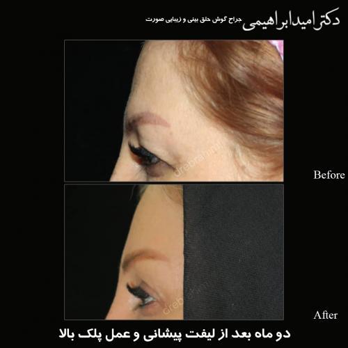 جراحی پلک 11