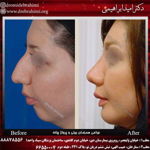 جراحی-بینی-و-پروتز-چانه-2