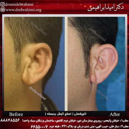 عمل-گوش-1