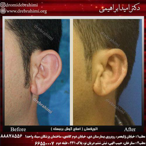 عمل-گوش-3
