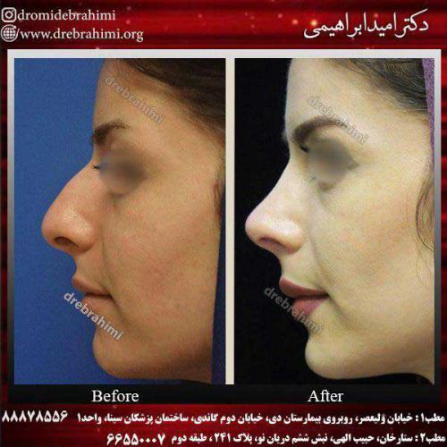عمل-بینی-استخوانی-11