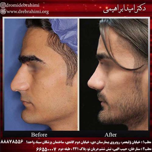 عمل-بینی-استخوانی-12