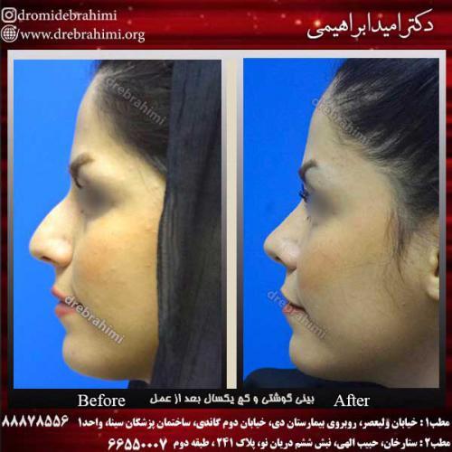 عمل-بینی-استخوانی-13