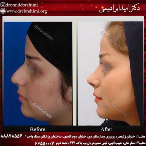 عمل-بینی-استخوانی-14