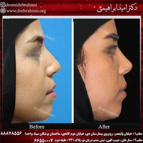 عمل-بینی-استخوانی-15