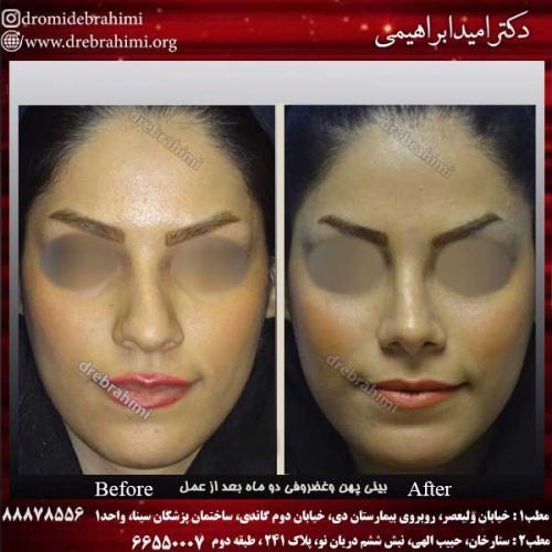 عمل-بینی-استخوانی-16