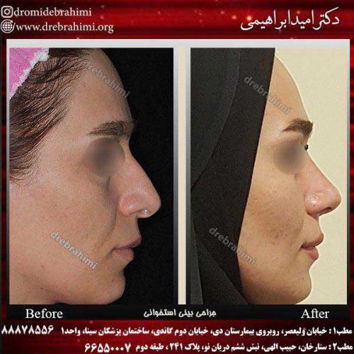 عمل-بینی-استخوانی-2