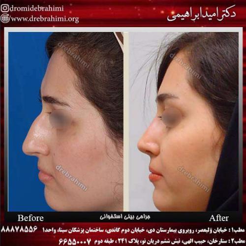 عمل-بینی-استخوانی-24