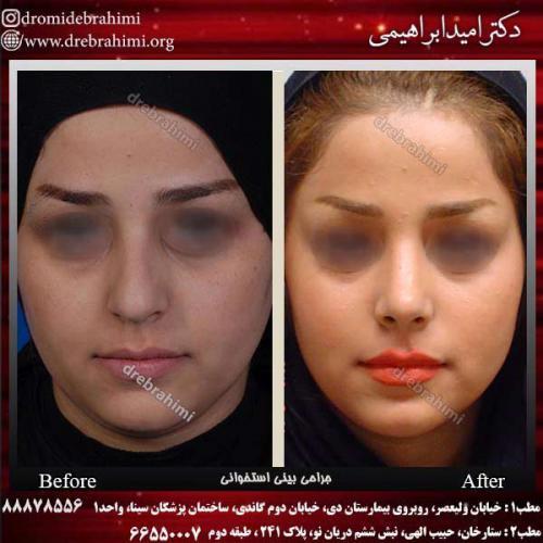 عمل-بینی-استخوانی-25