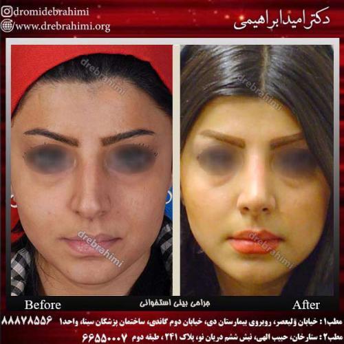 عمل-بینی-استخوانی-27