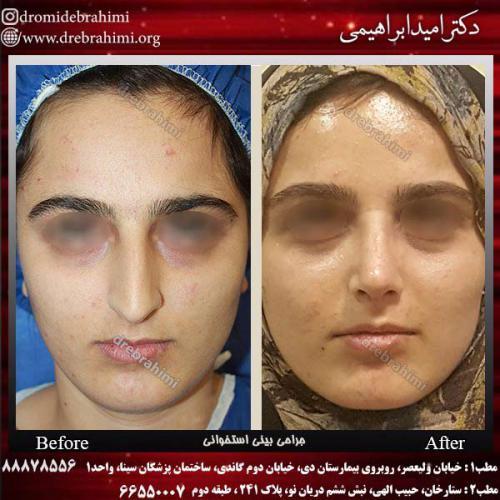 عمل-بینی-استخوانی-29