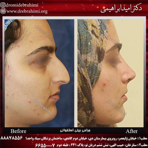 عمل-بینی-استخوانی-30