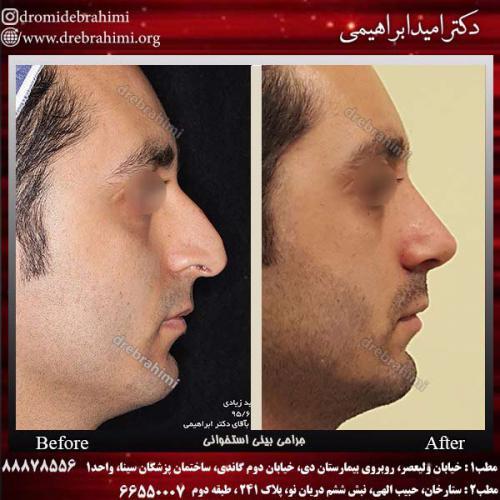 عمل-بینی-استخوانی-32