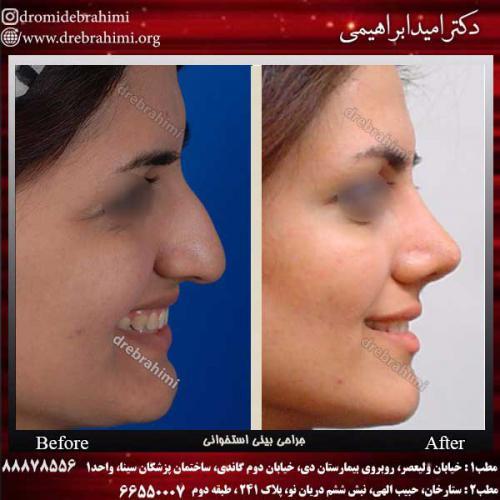 عمل-بینی-استخوانی-36