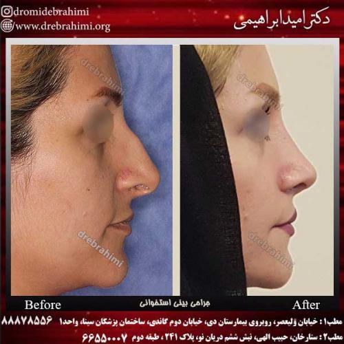 عمل-بینی-استخوانی-38