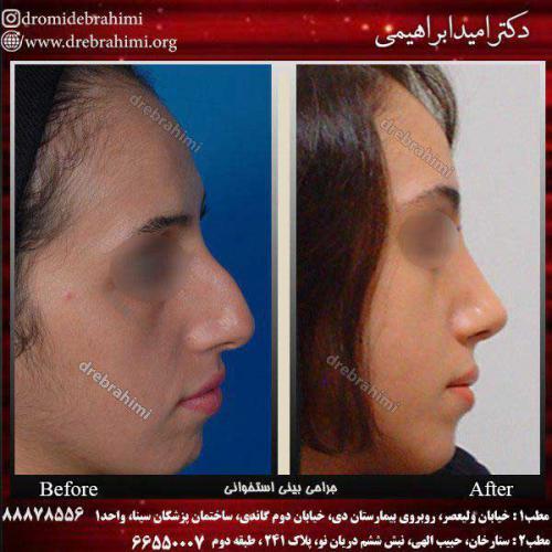 عمل-بینی-استخوانی-4