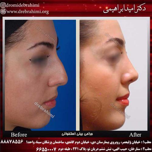 عمل-بینی-استخوانی-40
