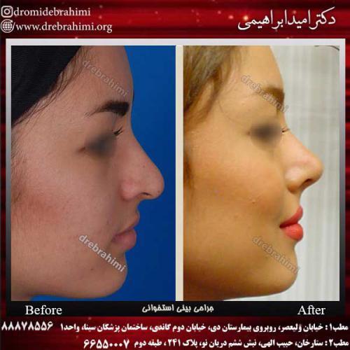 عمل-بینی-استخوانی-42