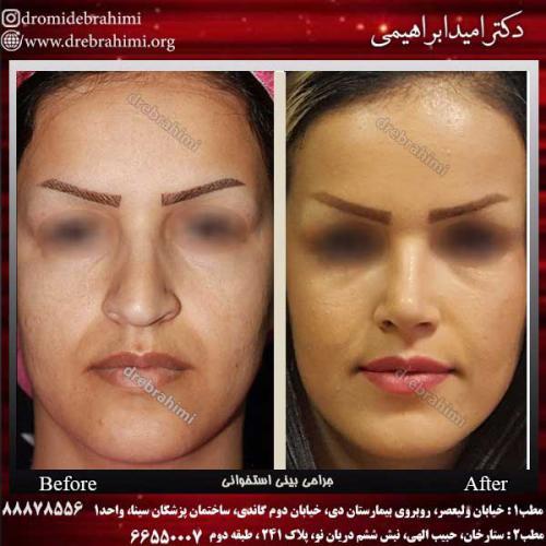 عمل-بینی-استخوانی-43