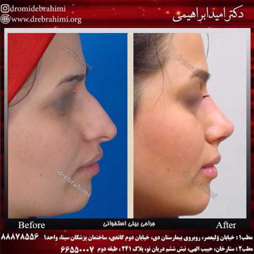 عمل-بینی-استخوانی-44