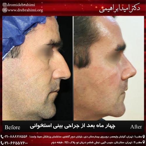 عمل بینی استخوانی 125