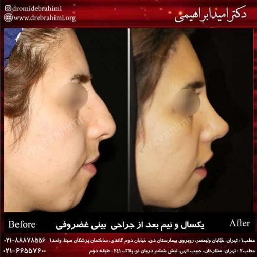 جراحی بینی غضروفی 15