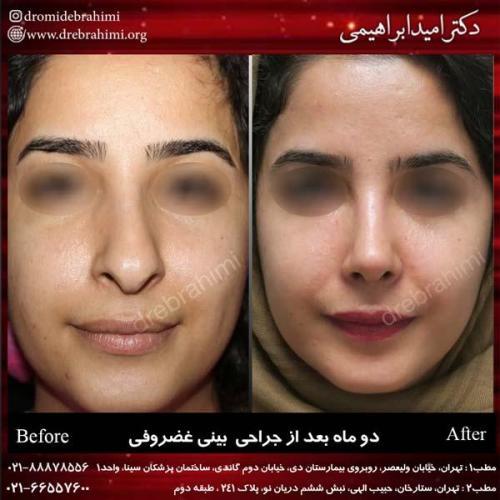 جراحی بینی غضروفی 16