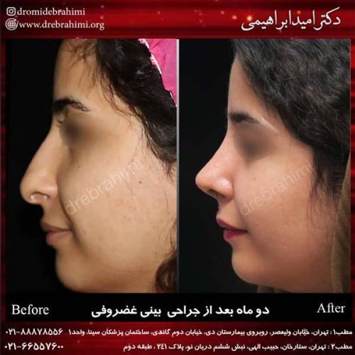 جراحی بینی غضروفی 17