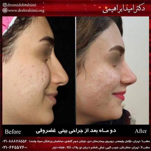 جراحی بینی غضروفی 21