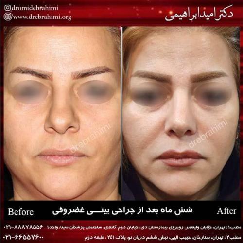 جراحی بینی غضروفی 23