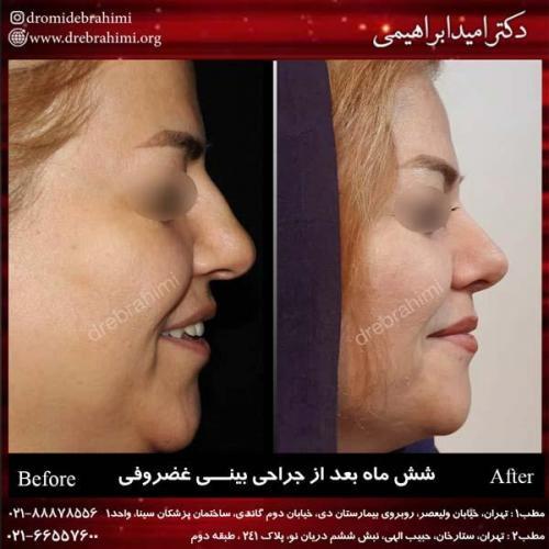 جراحی بینی غضروفی 24