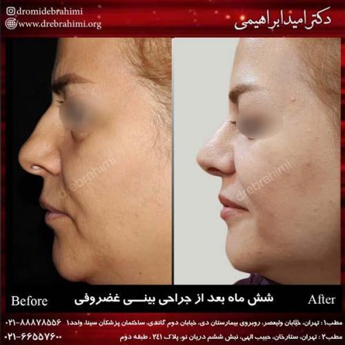 جراحی بینی غضروفی 26