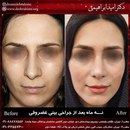 جراحی بینی غضروفی 27