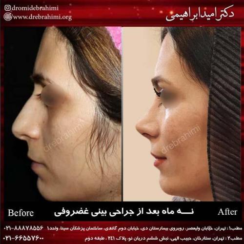 جراحی بینی غضروفی 28