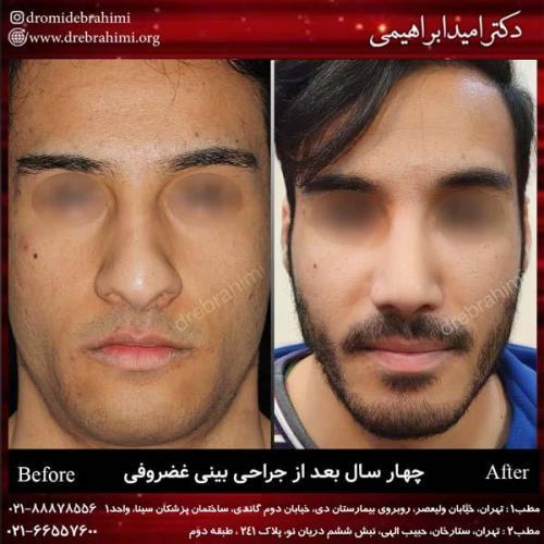 جراحی بینی غضروفی 30