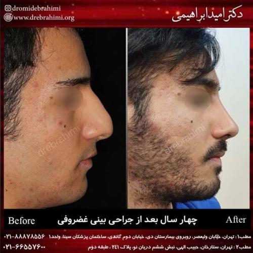 جراحی بینی غضروفی 32