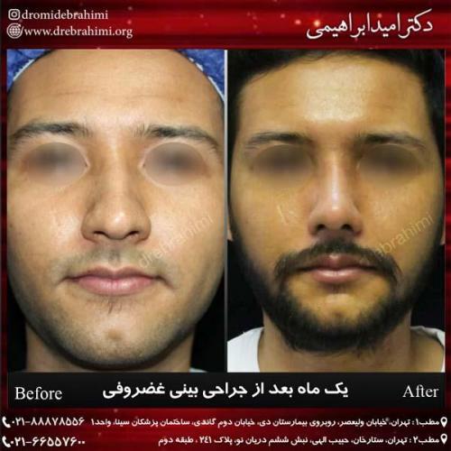 جراحی بینی غضروفی 33