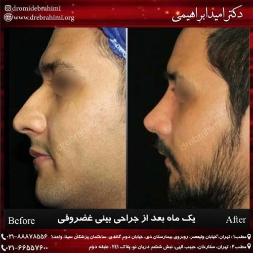 جراحی بینی غضروفی 34