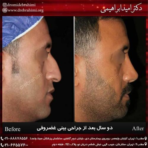 جراحی بینی غضروفی 36
